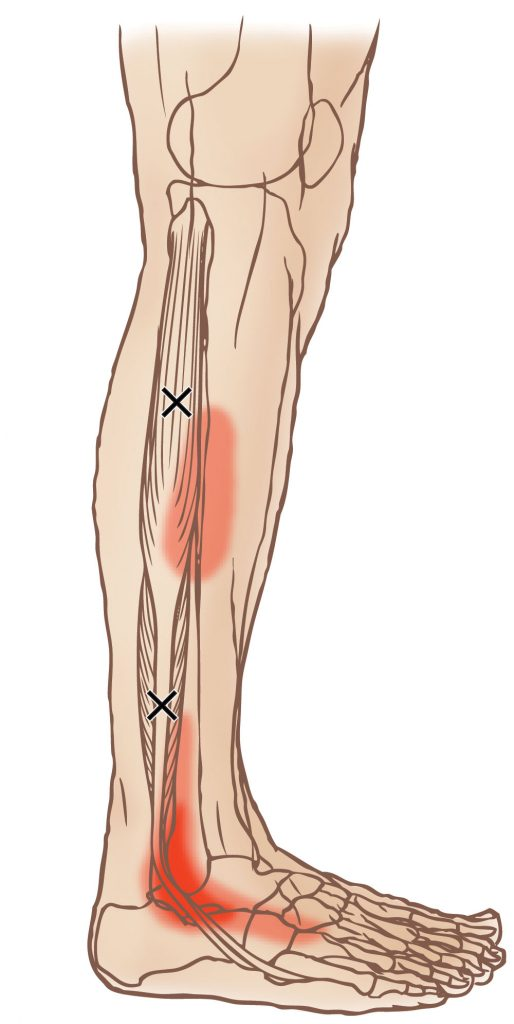 fibularis longus pain - 514×1024