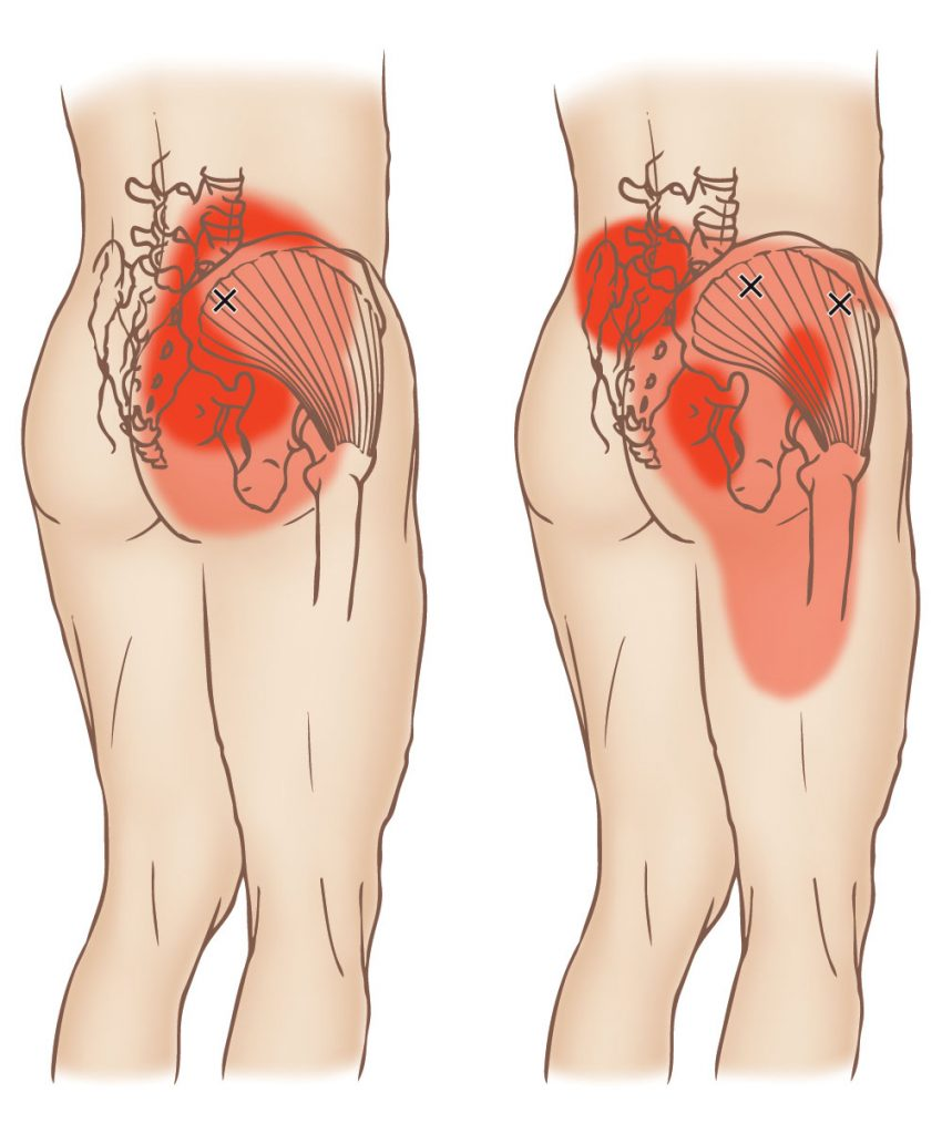 Gluteus medius - Trigger Point - Learn Muscles