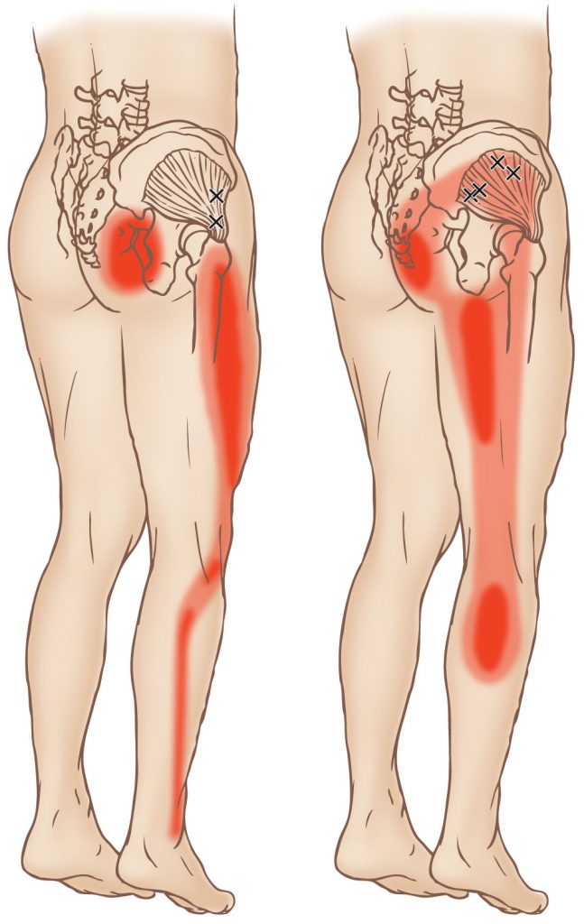 Gluteus Minimus Trigger Point Learn Muscles