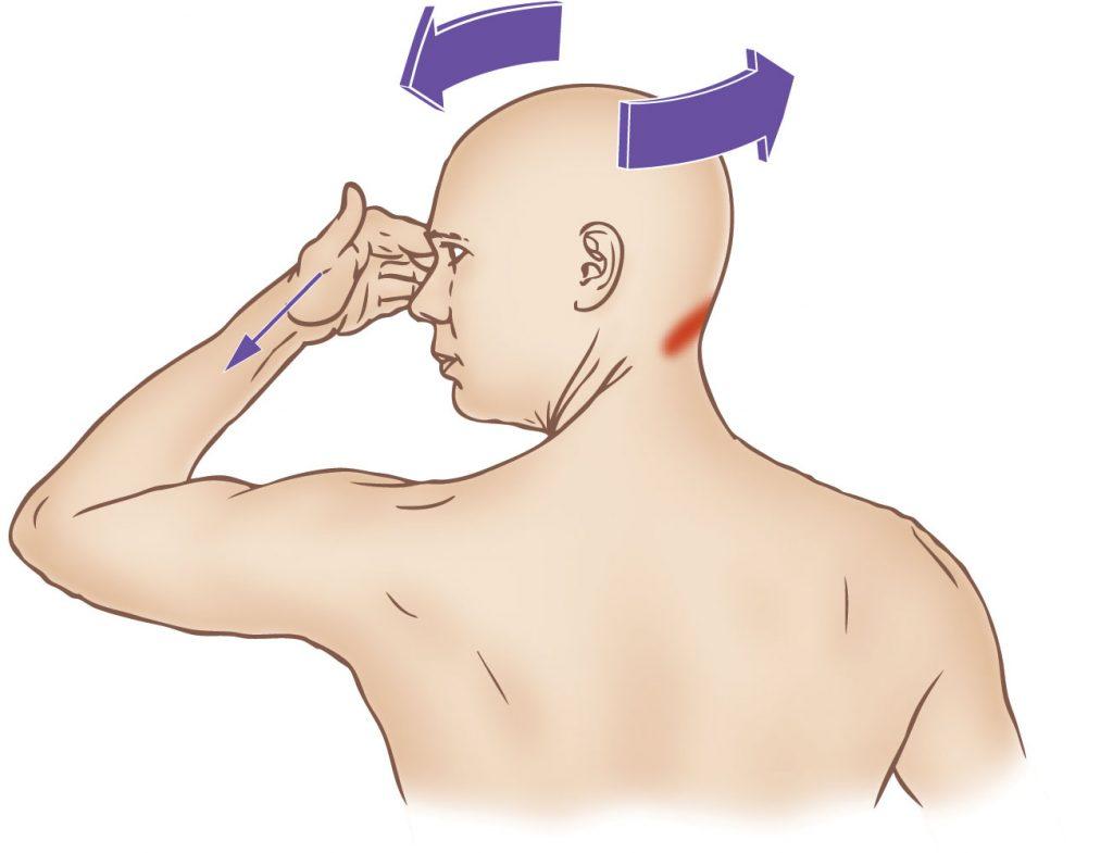 Obliquus capitis inferior - Stretching - Learn Muscles Obliquus Capitis Inferior