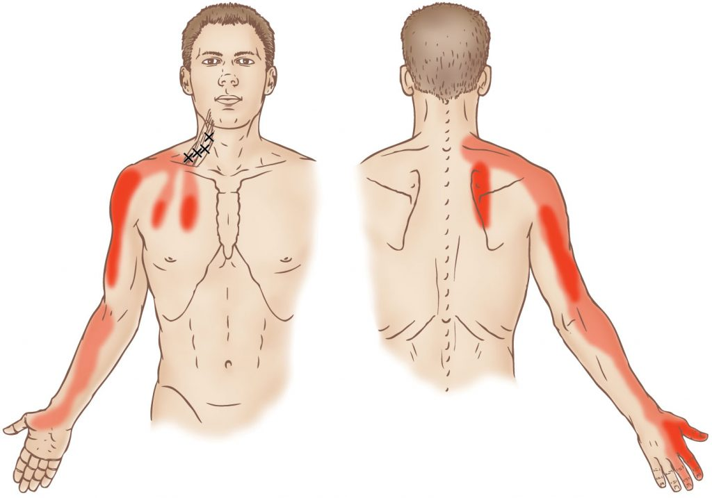 Scalene group - Trigger Point - Learn Muscles