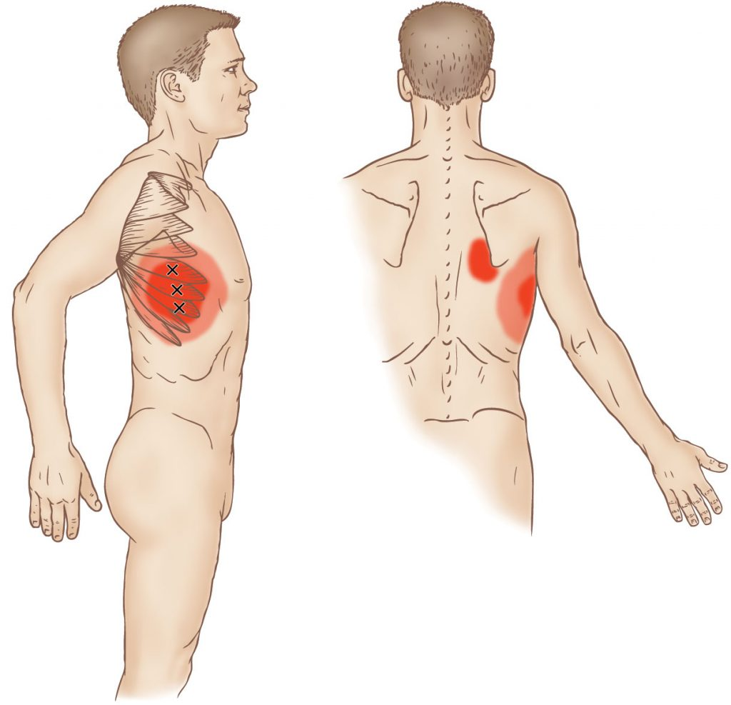Serratus anterior - Trigger Point - Learn Muscles