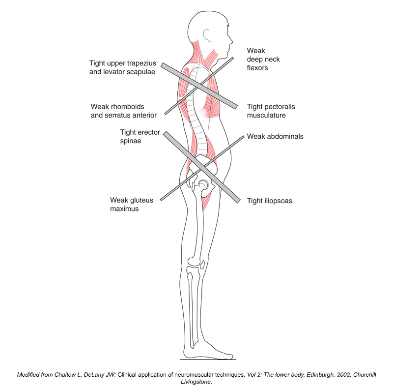 Upper and Lower Crossed Syndromes
