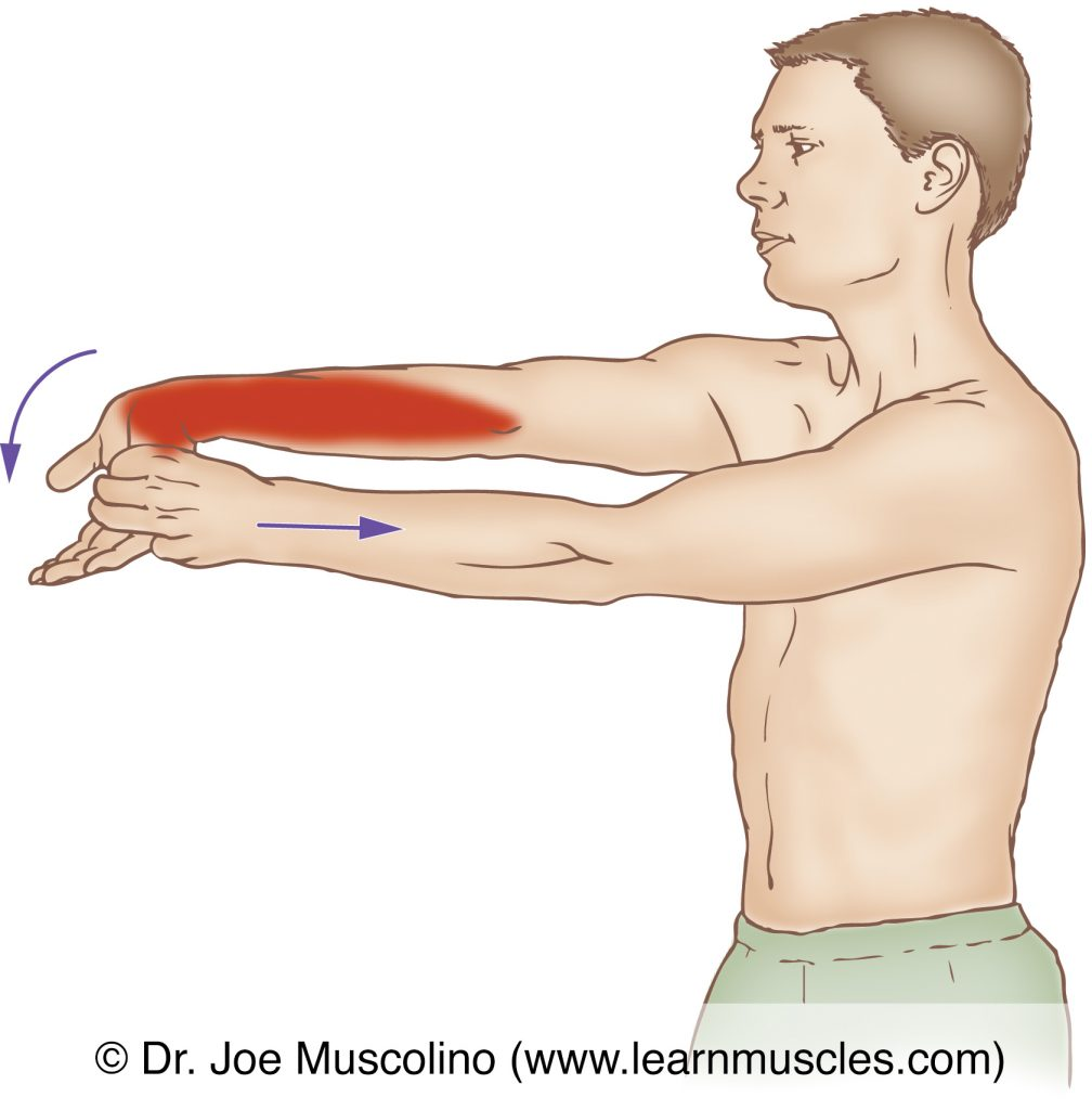 The flexor carpi radialis (of the wrist flexor group) is stretched with extension and ulnar deviation of the hand at the wrist joint, and the elbow joint fully extended.