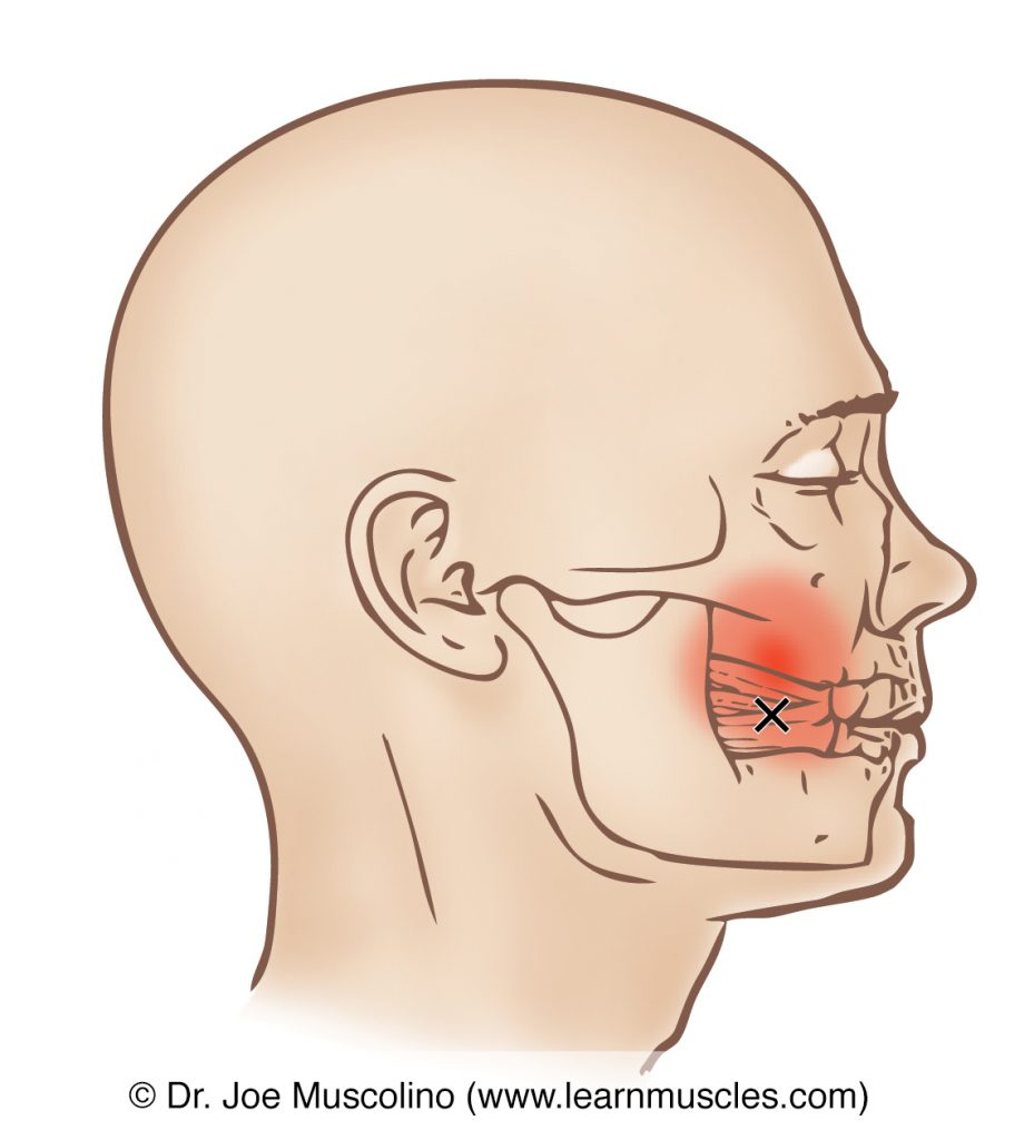 Lateral view of a myofascial trigger point and its referral zone in the buccinator, right side of the body.
