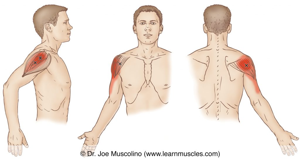 Lateral, anterior, and posterior views of myofascial trigger points in the right-side deltoid and their corresponding referral zones.