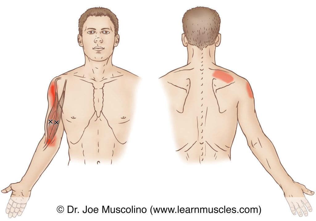 Anterior and posterior views of myofascial trigger points in the right-side biceps brachii and their corresponding referral zones.