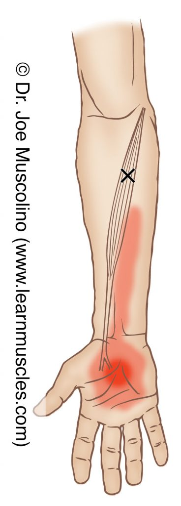 Anterior view of a myofascial trigger point in the right-side flexor carpi radialis and its corresponding referral zone.