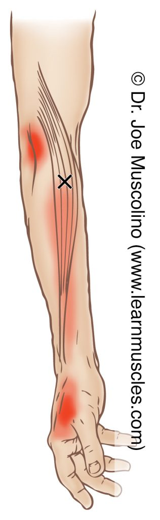 Lateral/radial view of a myofascial trigger point in the right-side brachioradialis and its corresponding referral zone.
