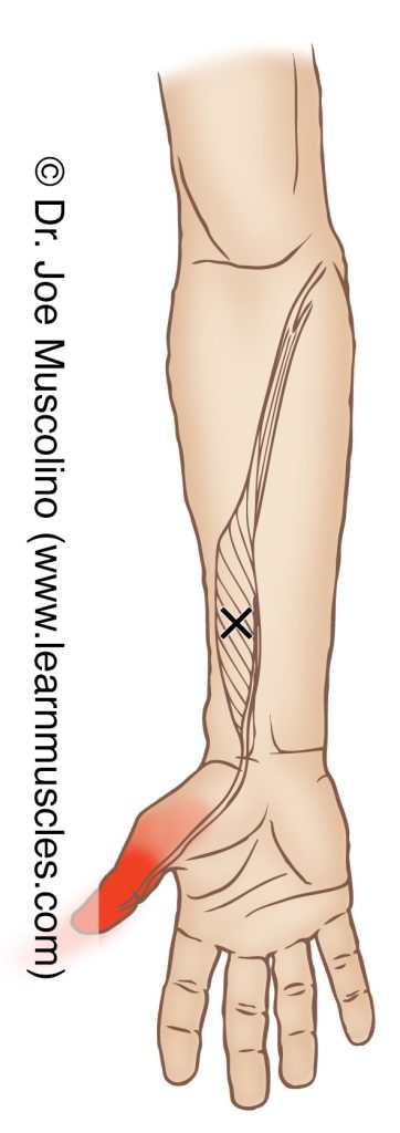 Anterior view of a myofascial trigger point in the right-side flexor pollicis longus and its corresponding referral zone.