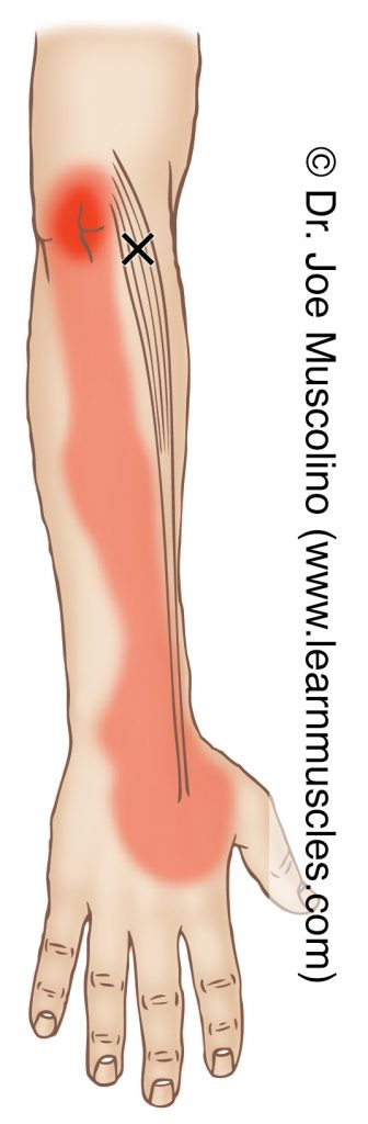 Lateral/radial view of a myofascial trigger point in the right-side extensor carpi radialis longus and its corresponding referral zone.