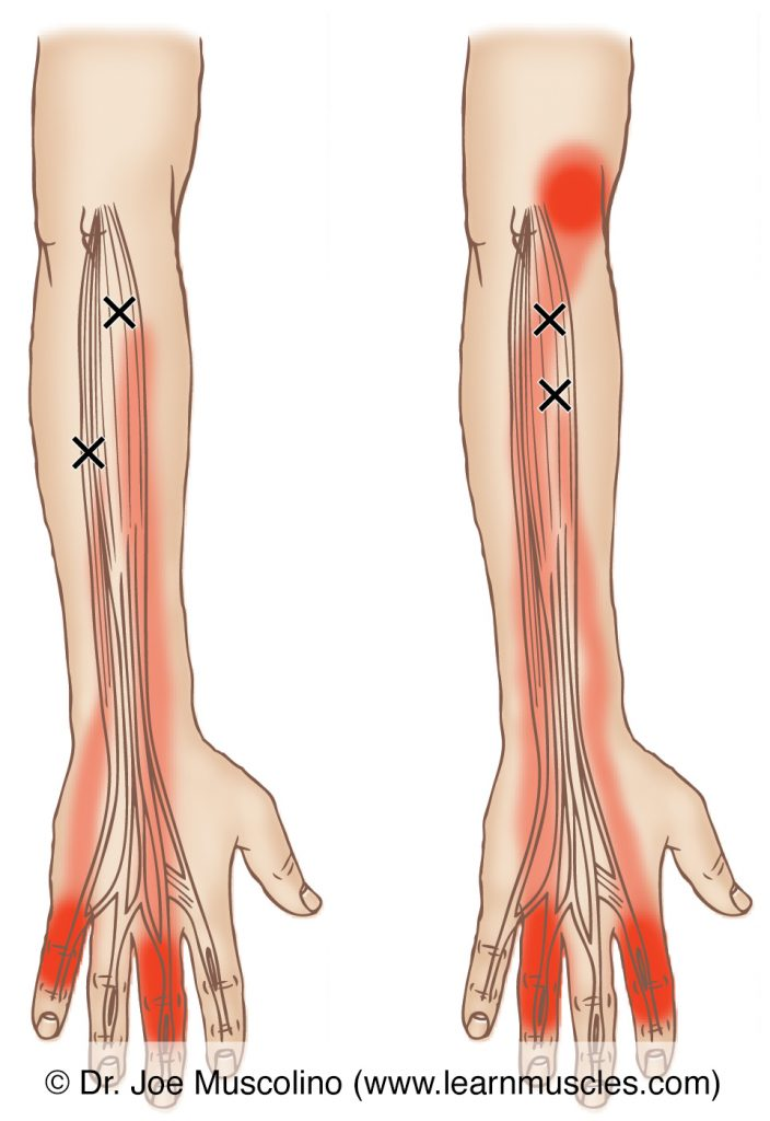 Posterior views of myofascial trigger points in the right-side extensor digitorum and extensor digiti minimi and their corresponding referral zones.