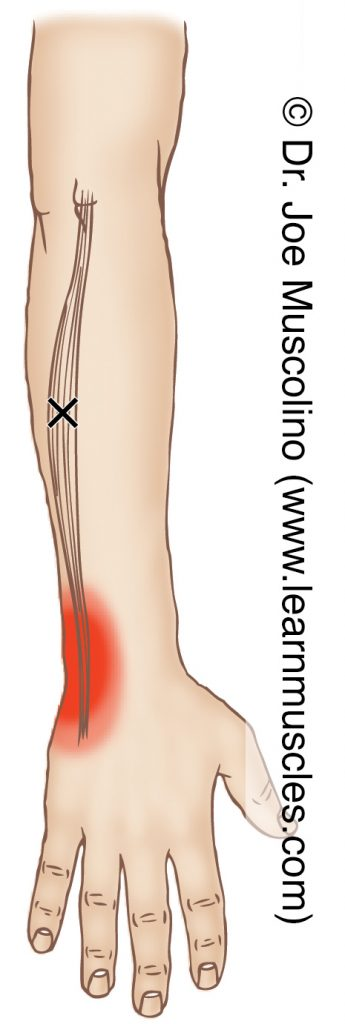 Posterior view of a myofascial trigger point in the right-side extensor carpi ulnaris and its corresponding referral zone.