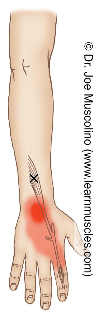 Posterior view of a myofascial trigger point in the right-side extensor indicis and its corresponding referral zone.