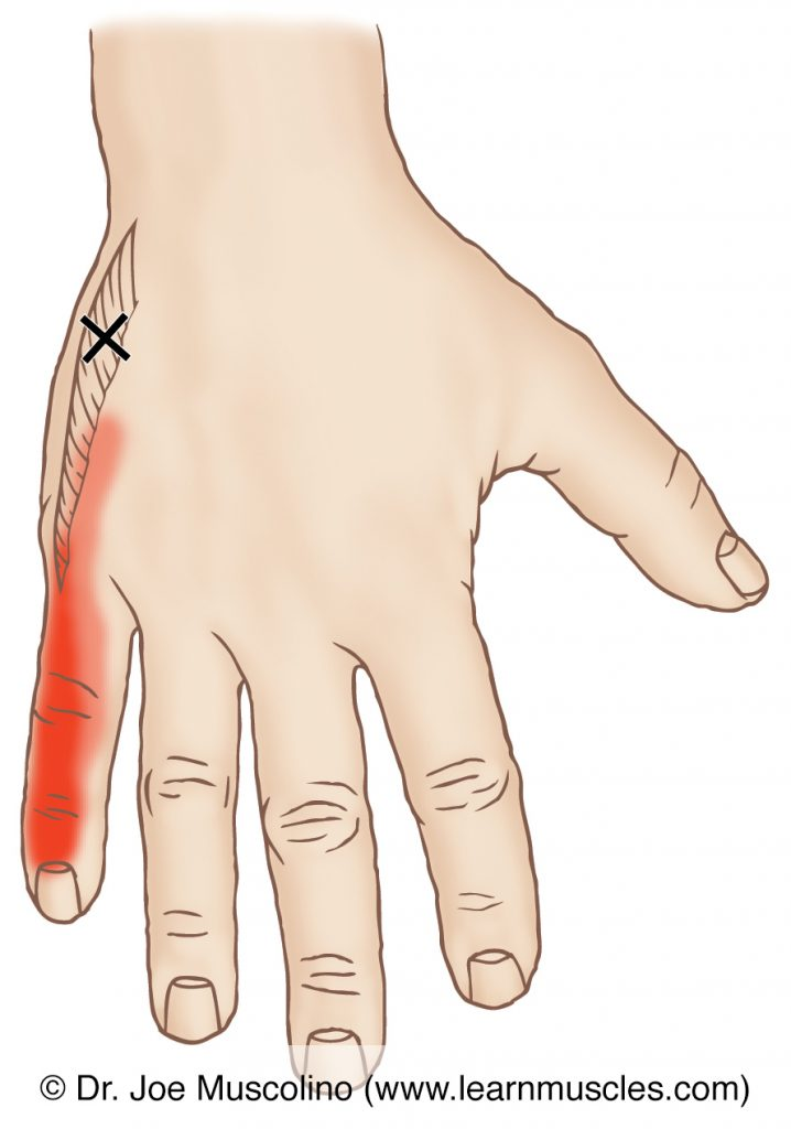 Posterior view of a myofascial trigger point in the right-side abductor digiti minimi manus and its corresponding referral zone.
