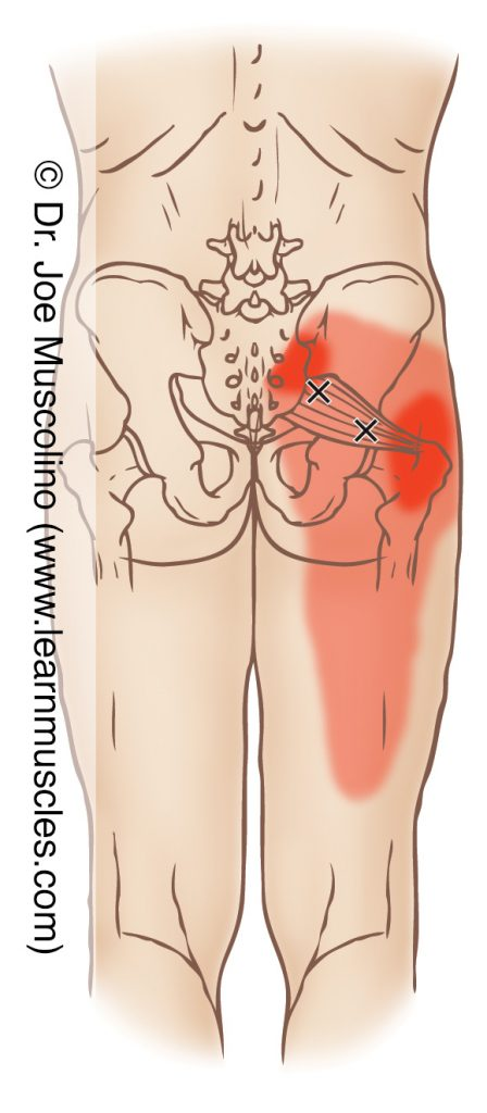Posterior view of myofascial trigger points in the right-side piriformis and their corresponding referral zones.