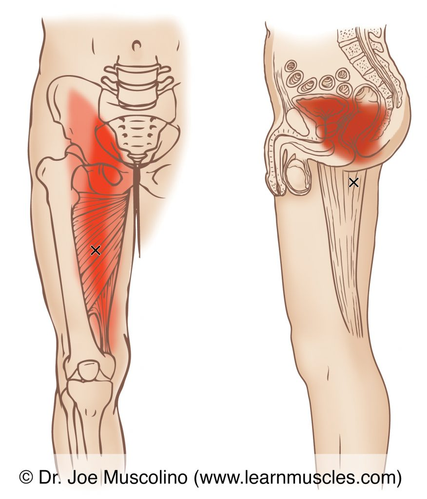 Anterior and medial views of myofascial trigger points in the right-side adductor magnus (of the adductor group) and their corresponding referral zones.