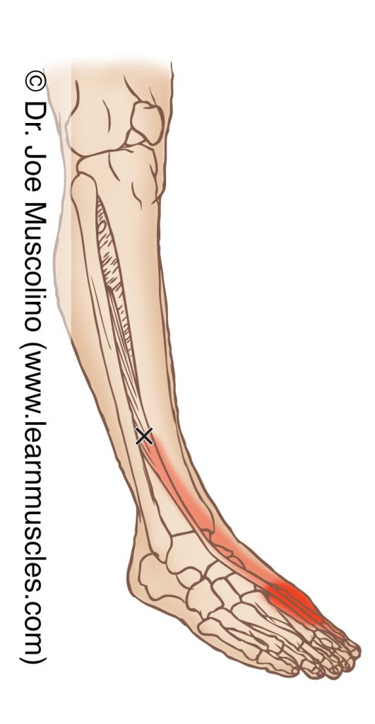 Anterolateral view of a myofascial trigger point in the right-side extensor hallucis longus and its corresponding referral zone.