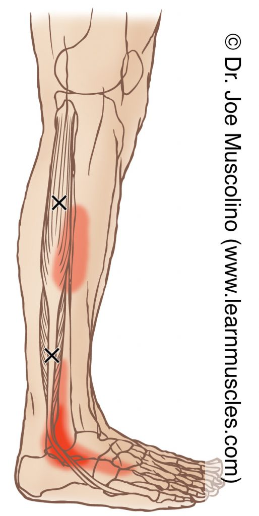 Lateral view of myofascial trigger points in the right-side fibularis longus and fibularis brevis and their corresponding referral zones.
