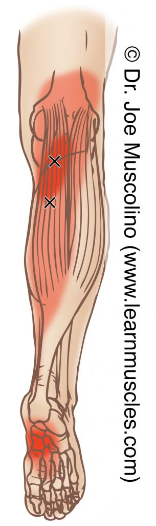 Posterior view of myofascial trigger points in the right-side gastrocnemius, medial head, and their corresponding referral zones.
