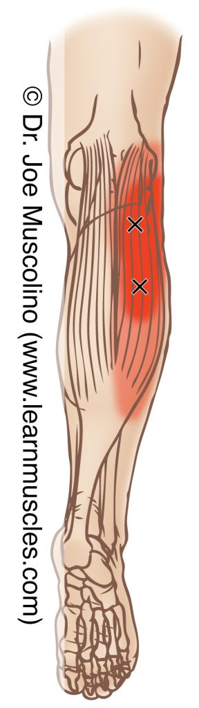 Posterior view of myofascial trigger points in the right-side gastrocnemius, lateral head, and their corresponding referral zones.