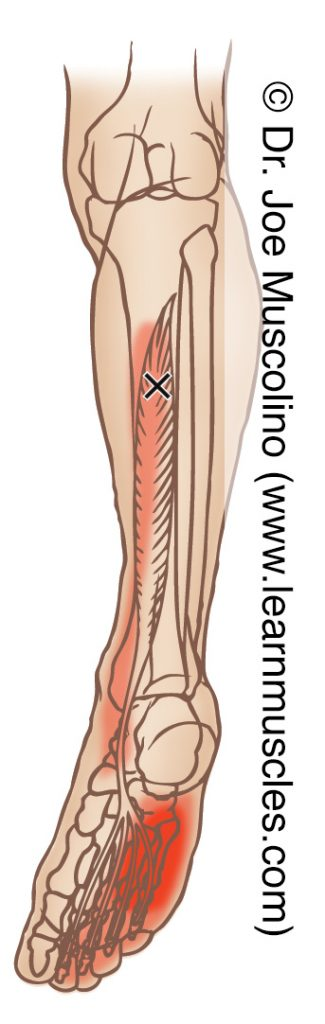 Posterior view of a myofascial trigger point in the right-side flexor digitorum longus and its corresponding referral zone.