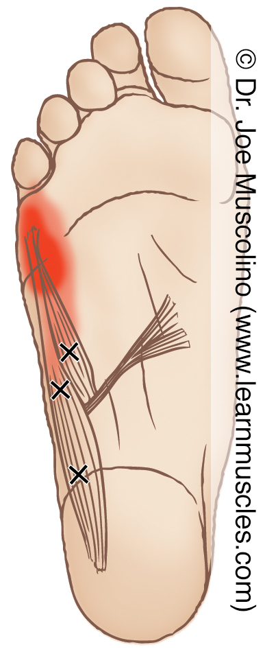 Distal (inferior) view of myofascial trigger points in the right-side abductor digiti minimi pedis and flexor digiti minimi pedis and their corresponding referral zones.