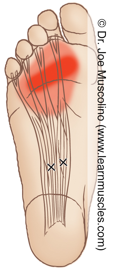Distal (inferior) view of myofascial trigger points in the right-side flexor digitorum brevis and their corresponding referral zones.