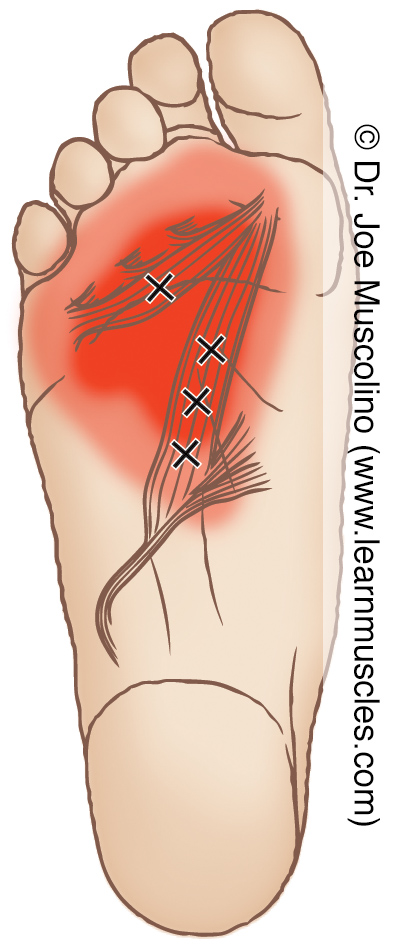 Distal (inferior) view of myofascial trigger points in the right-side adductor hallucis and their corresponding referral zones.
