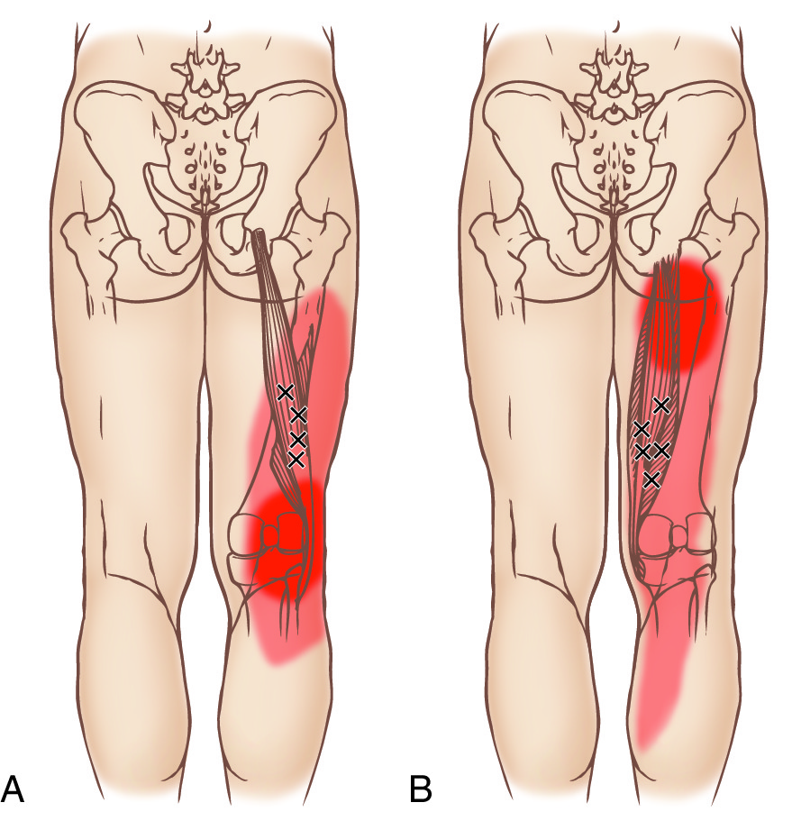 Hamstrings Trigger Points