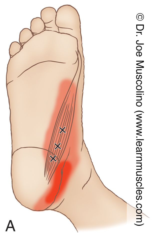 Inferomedial (distal and medial) view of myofascial trigger points in the right-side abductor hallucis and their corresponding referral zones.