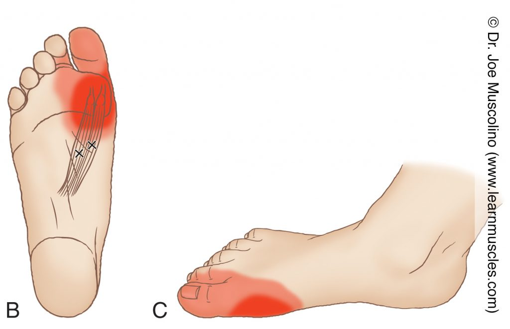 Distal (inferior) and medial views of myofascial trigger points in the right-side flexor hallucis brevis and their corresponding referral zones.
