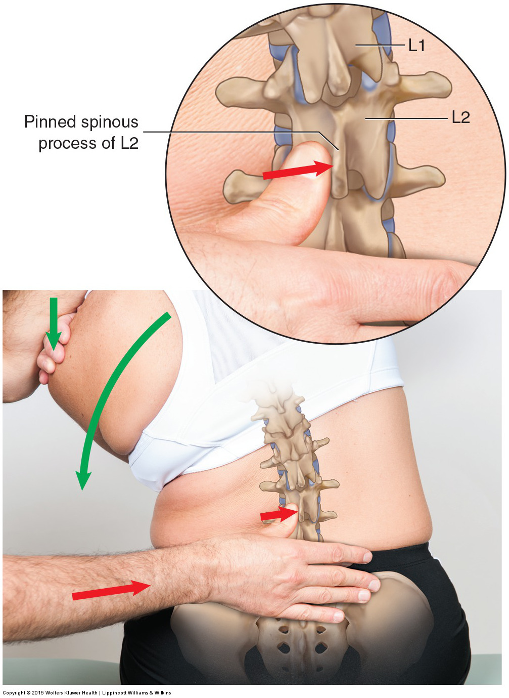 Motion palpation of the lumbar spine seated.