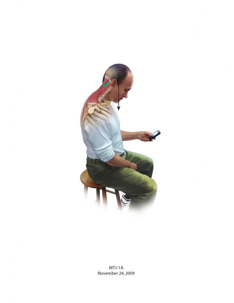 bad posture with smart phone