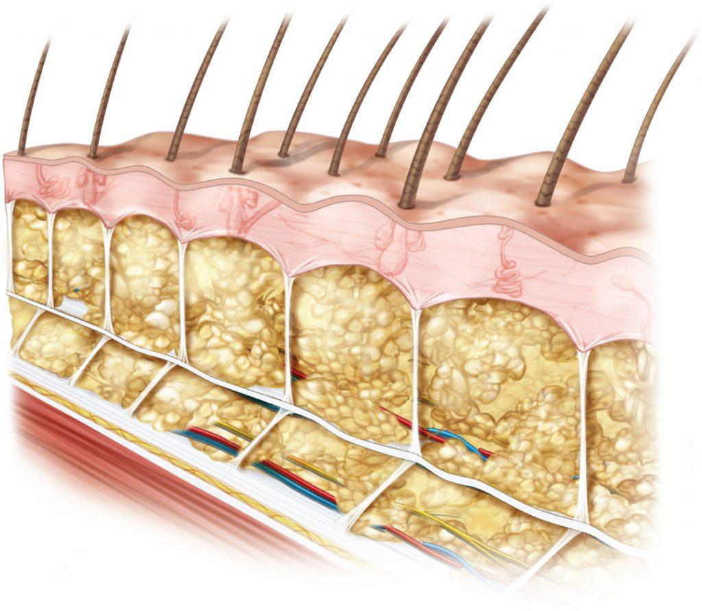 Shearing of subcutaneous fascia