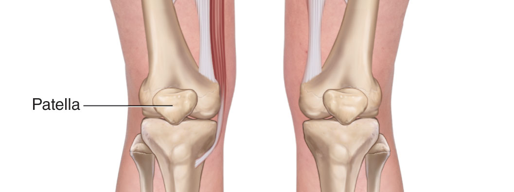 Anterior view of the knee joint bilaterally. Permission Joseph E.Muscolino. www.learnmuscles.com.