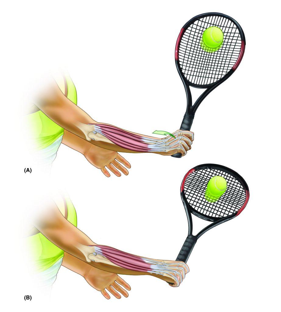 Backhand in Tennis - Permission Joseph E. Muscolino - www.learnmuscles.com