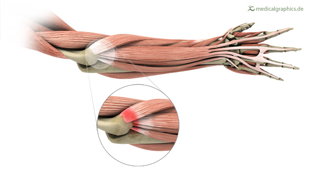 common extensor belly/tendon