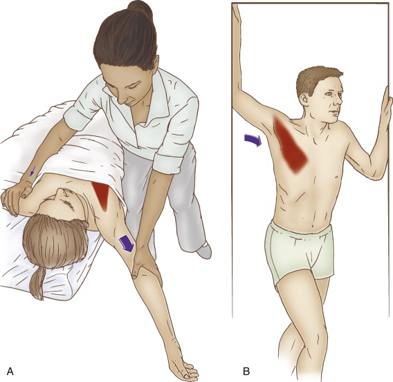 Therapist-Assisted and Self-Care Stretching of the Pectoralis Minor. Permission Joseph E. Muscolino. The Muscle and Bone Palpation Manual - with Trigger Points, Referral Patterns, and Stretching, 2ed (Elsevier, 2016).