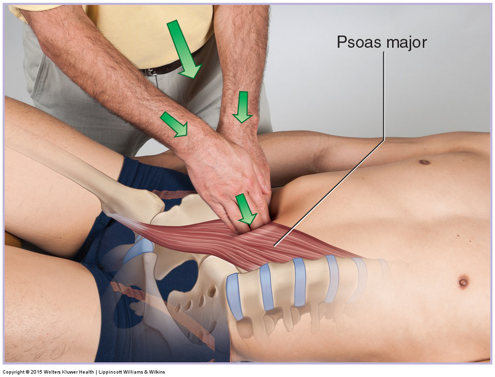 Deep pressure into the psoas major abdominal belly by sinking in slowly! Permission Joseph E. Muscolino. Manual Therapy for the Low Back and Pelvis - A Clinical Orthopedic Approach (Elsevier, 2015).