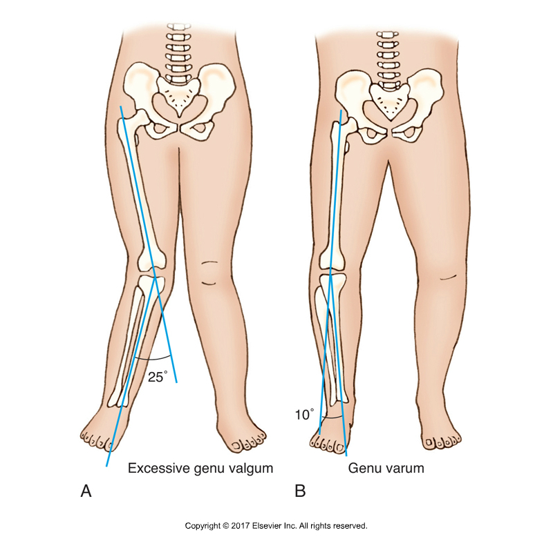 Excessive genu valgum and genu varum. Permission Joseph E. Muscolino. Kinesiology - The Skeletal System and Muscle Function, 3rd ed. (Elsevier, 2017).