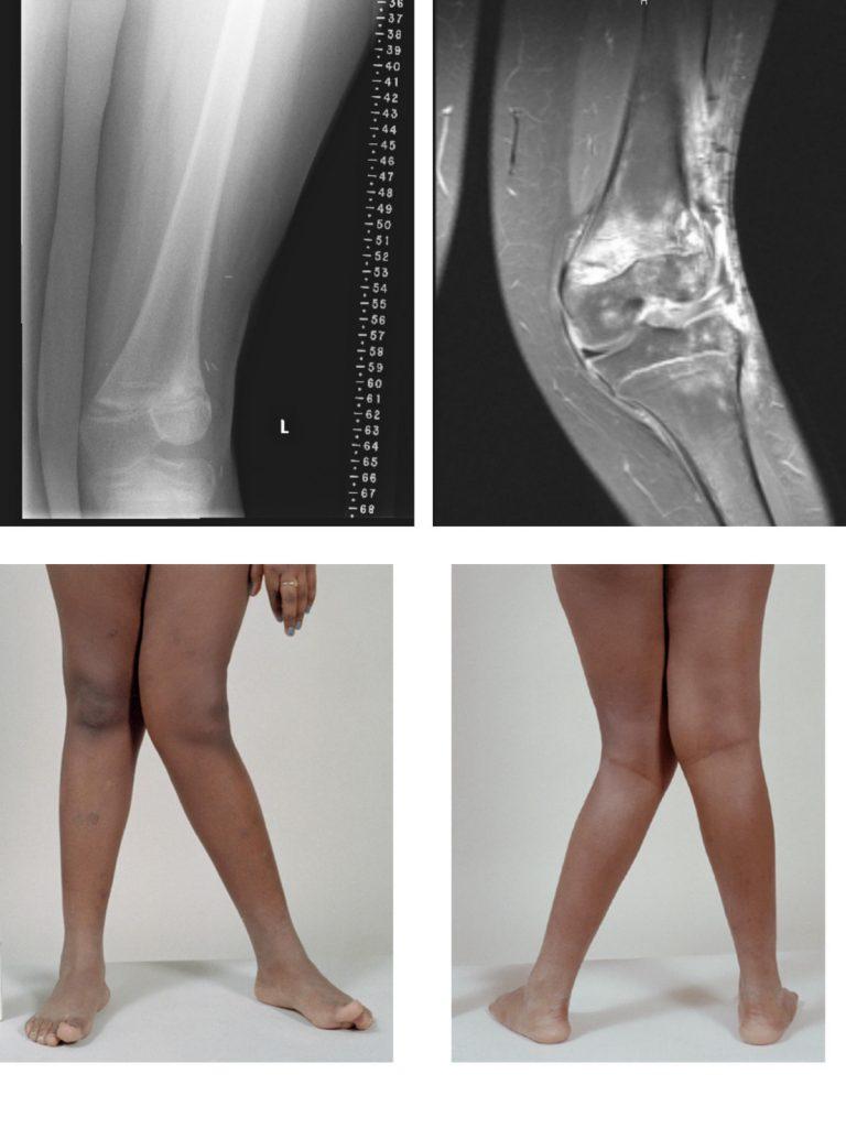Genu Knee Valgus