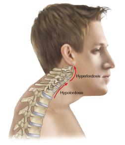 Forward head posture. Permission Joseph E. Muscolino. Advanced Treatment Techniques for the Manual Therapist - Neck (2013)