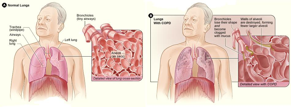 The effect or manual therapy on COPD