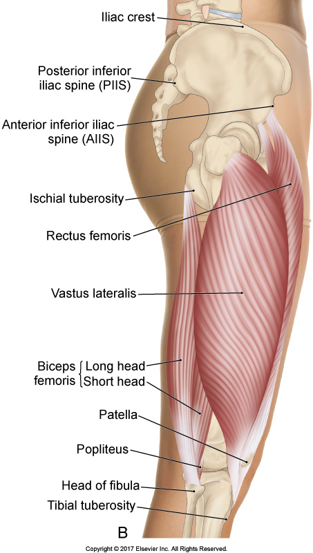 Lateral thigh: vastus laterals deep to the ITB
