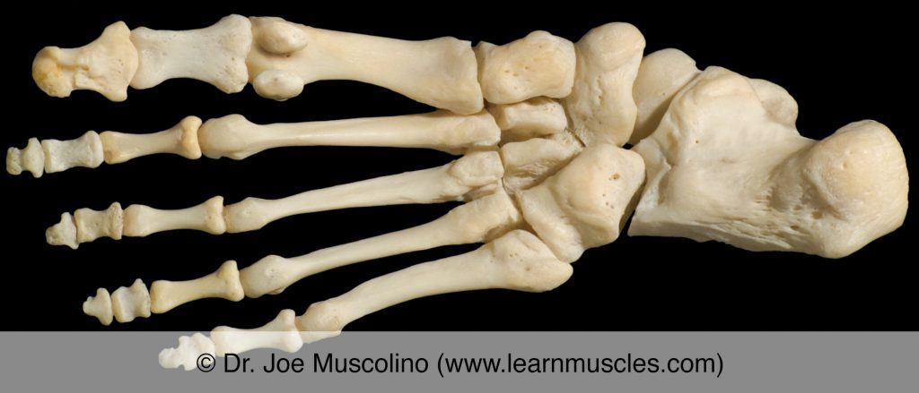 Plantar view of the foot on the right side of the body, demonstrating the metatarsophalangeal joints (as well as other joints of the foot).