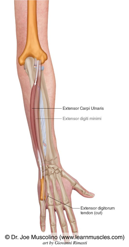 The extensor carpi ulnaris is seen. The extensor digiti minimi has been ghosted in.