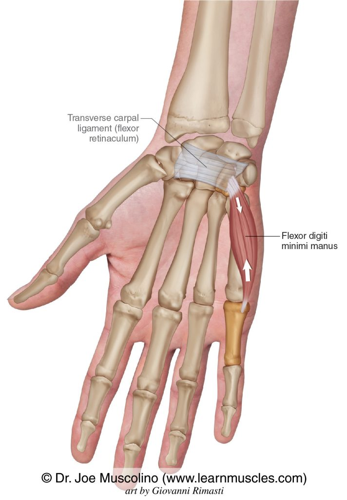 The flexor digiti minimi manus intrinsic muscle of the hand. The transverse carpal ligament (flexor retinaculum) has been drawn in.