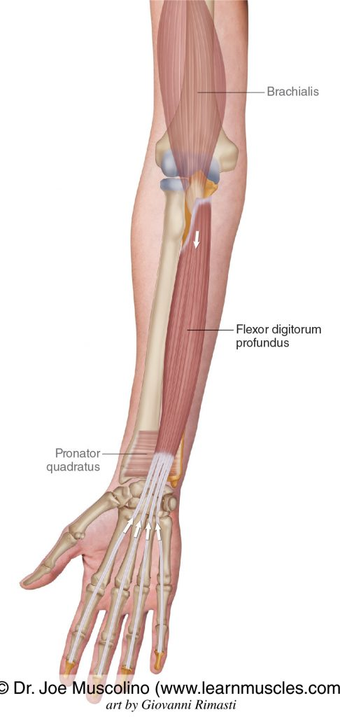 The flexor digitorum profundus is seen. The brachialis and pronator quadratus have been ghosted in.