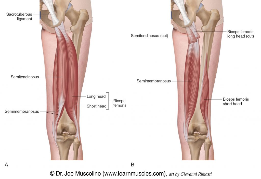 Superficial and deep views of the posterior thigh demonstrating the hamstring group of muscles: semitendinosus, semimembranosus, and biceps femoris (long head and short head).